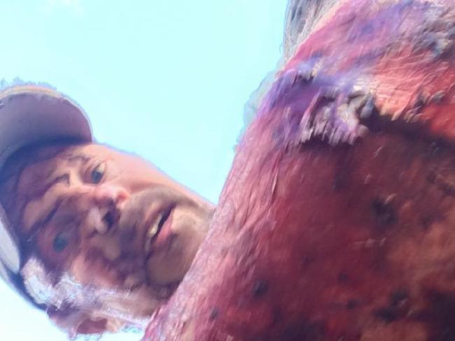 Todd Orr was shows off his bloodied arm. Picture: Facebook