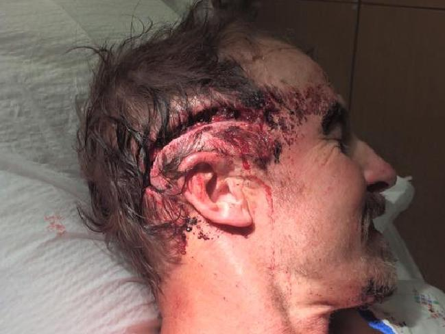 The hiker was treated for a five-inch gash to the head. Picture: Facebook