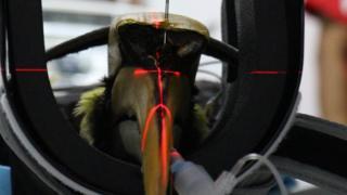The hornbill undergoes a biopsy