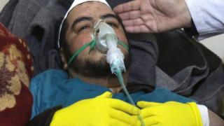 Man receives treatment after a gas attack in the Syrian town of Khan Sheikhoun. 4 April 2017