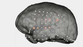 Patterns of activity on animated human brain undergoing auditory test